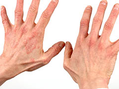 Skin Burns