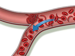 Blood Vessel Disease