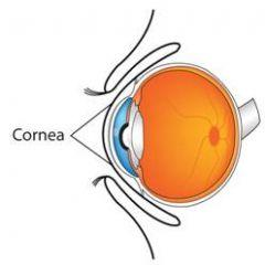Corneal Ulcer Treatment