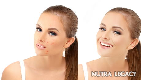 Acne Rosacea Treatment