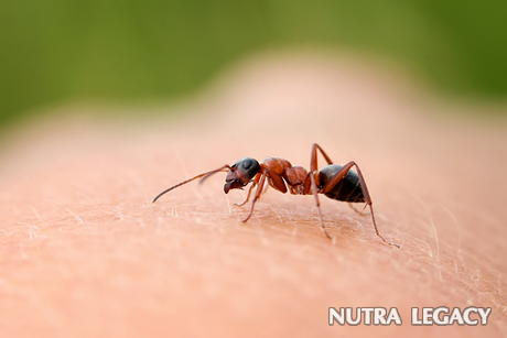 Ant Bites Treatment