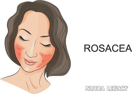 Blood Vessels And Rosacea - 5 Of The Most Effective Rosacea Remedies