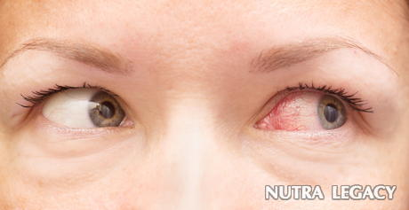 Burst Blood Vessels In Eye