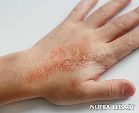 causes of dry itchy skin