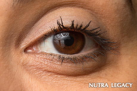 Glaucoma Natural Treatment