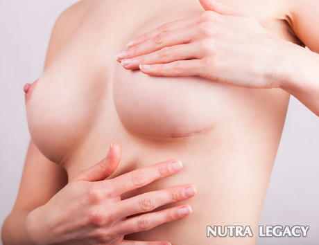 How To Get Rid Of Cosmetic Surgery Scars
