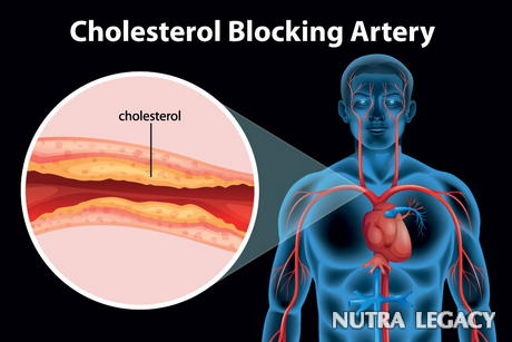 Lowering Cholesterol Without Statins
