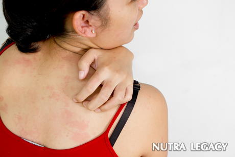 Top 10 Ways To Cure Itchy Rash