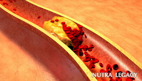 Treatments For Clogged Arteries - 7 Remedies To Clean Clogged Arteries
